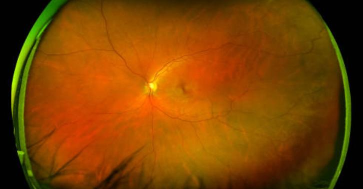 Un dispositivo para tratar el desprendimiento de retina, desarrollado en parte por la UPM, premio Euretina 2012