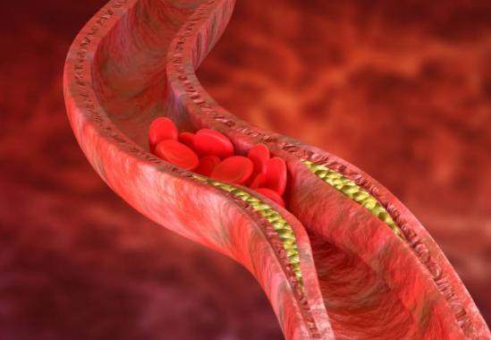La mitad de la población española tiene colesterol alto