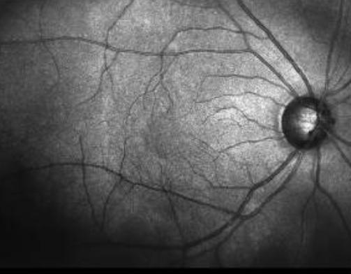 La tomografía del nervio óptico permite detectar patologías oculares y neurodegenerativas